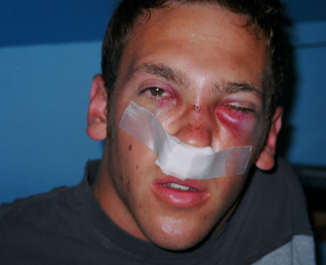 http://photos.wakeboarder.com/data/502/broken_face_3.jpg